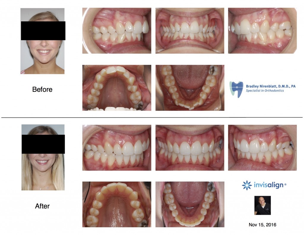 Invisalign Asymmetry