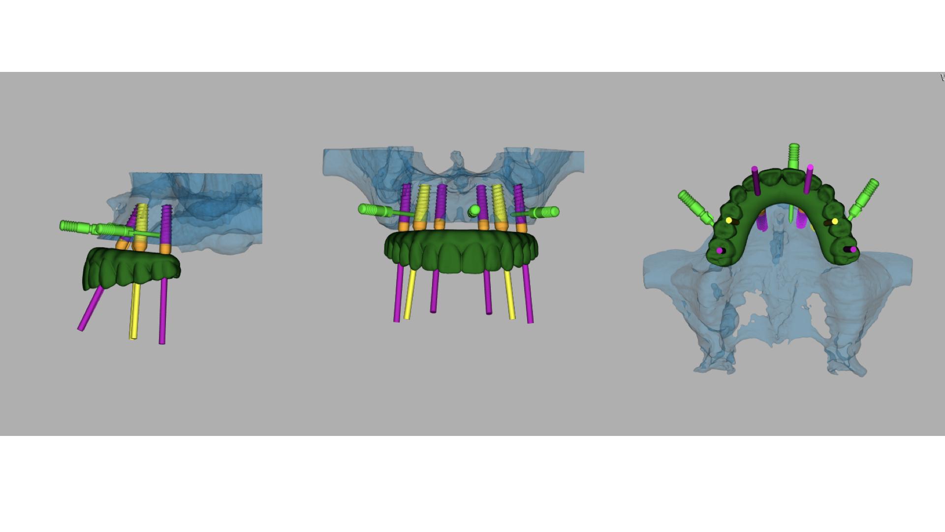 Our Blog - Synergy Periodontics & Implants   Fredericksburg VA