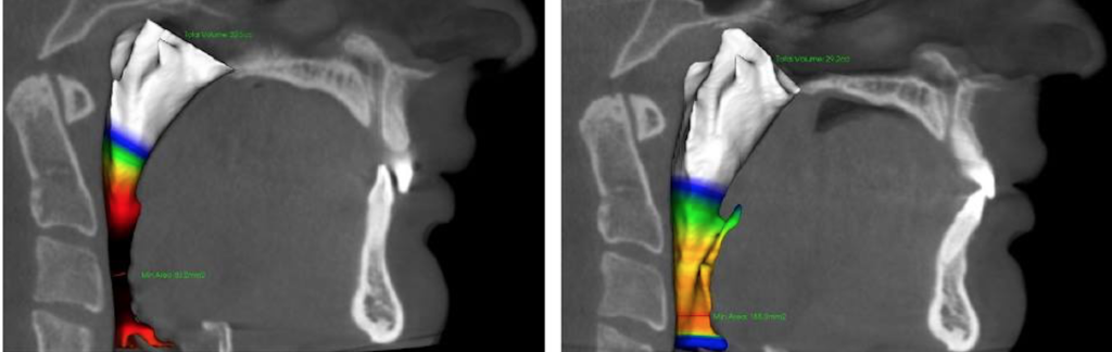 Airway before and after image by Marianna Evans et al.