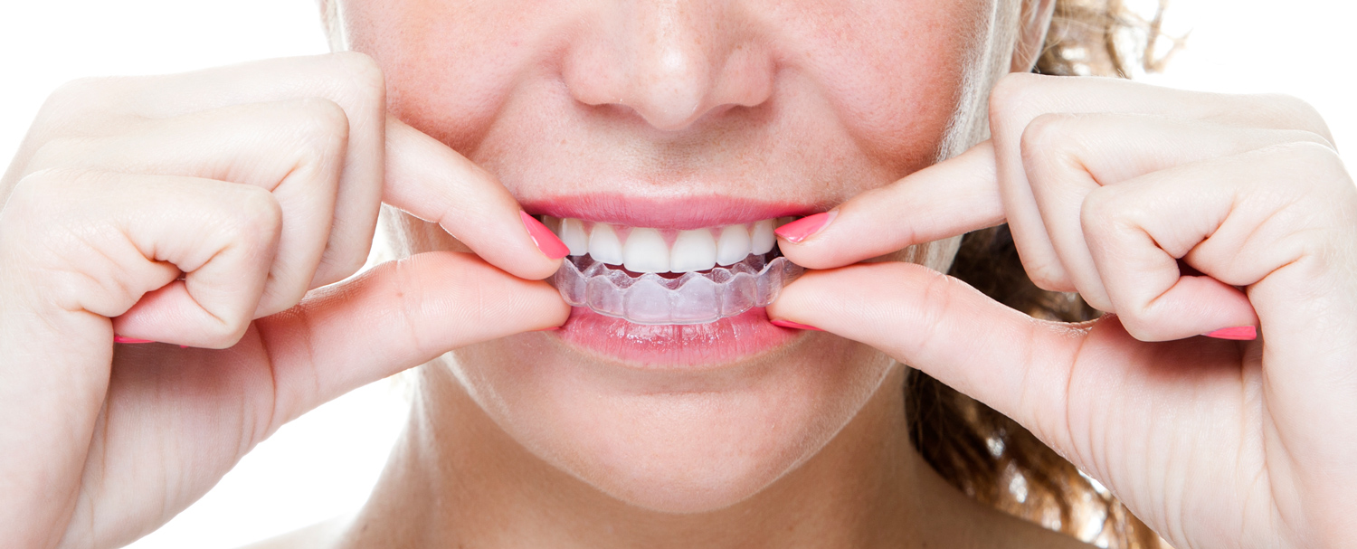 Beware of do it yourself orthodontics with the promise of low fees and simplicity many do it yourself direct to consumer teeth straightening companies have gained recent popularity solutioingenieria Image collections