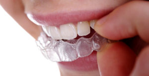What is DIY Orthodontics?