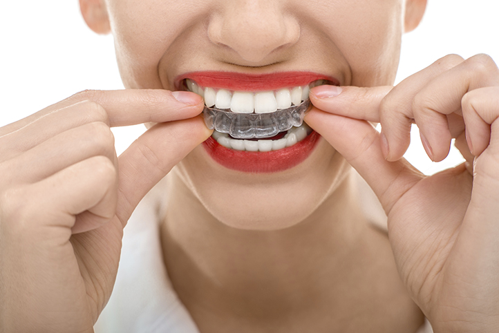 Woman Putting on invisalign aligners