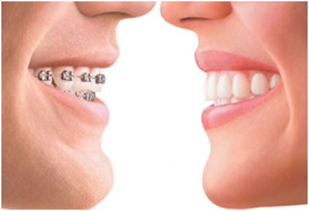 The-benefits-of-braces
