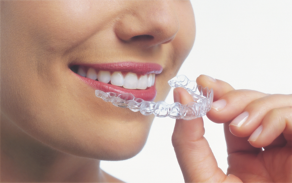 Invisalign Braces Struble Orthodontics