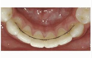 Permanent Retainer Costs - Orthodontist Gainesville GA 30501 - Wilson ...